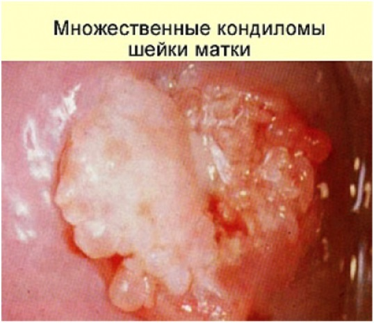 Кондилома шейки матки: причины, диагностика, лечение