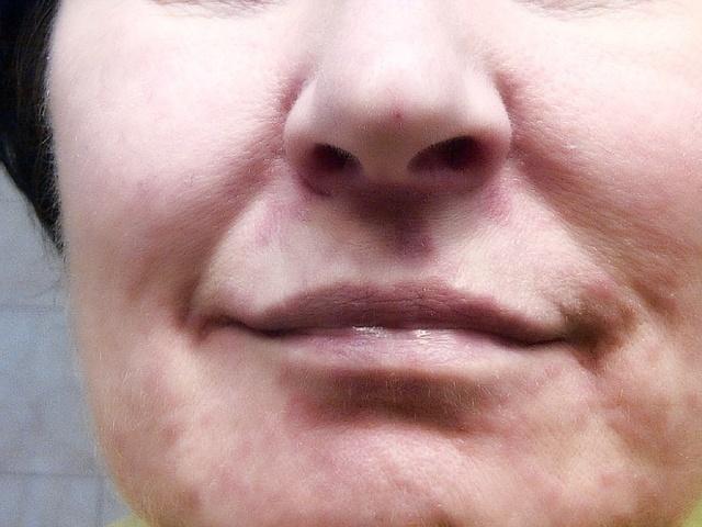Шелушится кожа на лице: почему так происходит у женщин, мужчин, ребенка, кожа сухая, краснеет, покрывается пятнами, сохнет, вокруг рта