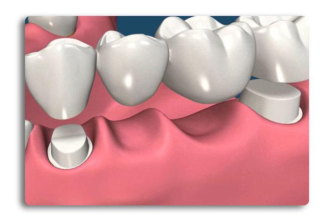 Фарфоровые коронки на передние зубы — плюсы и минусы, этапы изготовления, препарирование