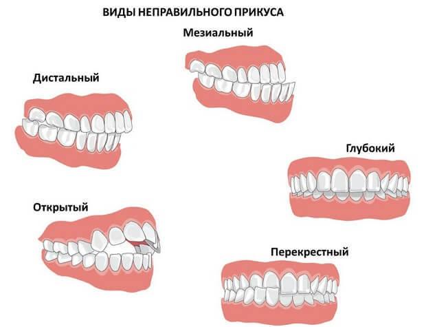 Трескаются губы. Причины и лечение у детей, мужчин, женщин. Чего не хватает в организме, что делать