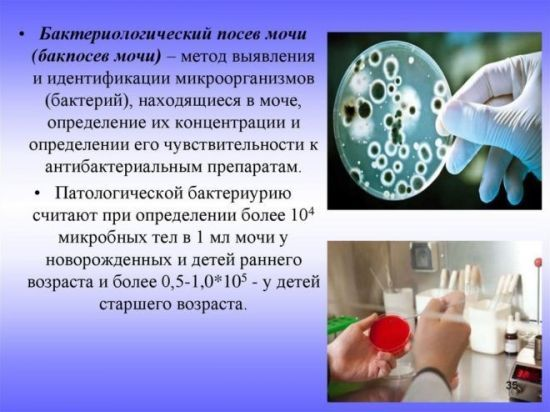 Клебсиелла пневмония при беременности: в мазке и в моче проявление болезни, а также симптоматика и особенности развития, и необходимое лечение
