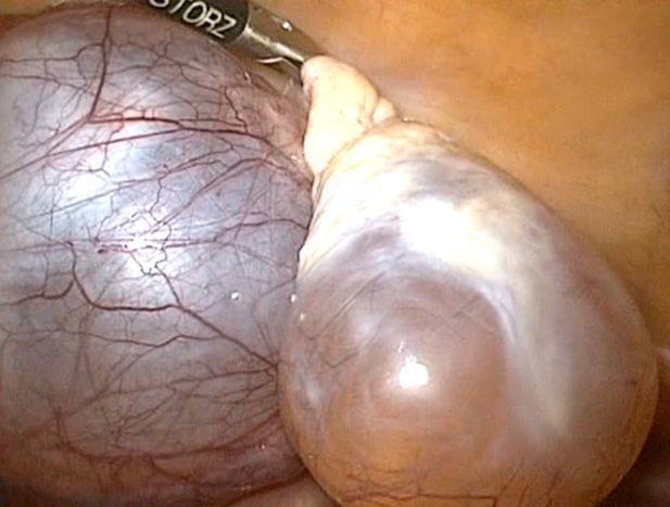 Параовариальная киста, ретенционная киста, эндометриоидная и киста яичника - виды кист и беременность