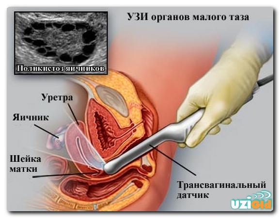 Узи малого таза > как подготовиться > на какой день цикла» width=»578″ height=»450″ class=»size-full aligncenter» /></p> <h3>Показания к УЗИ малого таза</h3> <p>УЗИ-сканирование малого таза у женщин позволяет провести диагностику таких органов, как матка с ее придатками (яичники и маточные трубы), шейка матки и мочевой пузырь.</p> <p> Такая процедура обязательно делается во время беременности, при гинекологических проблемах и нарушениях работы мочеполовой системы. Специалисты также советуют проходить ультразвук указанных органов регулярно для профилактики женских заболеваний.</p> <p> Основные показания для первоначального УЗИ-исследования этой области:</p> <ul> <li>подозрение на беременность;</li> <li>различные патологии на ранних сроках беременности;</li> <li>воспалительные процессы;</li> <li>патологии матки и яичников;</li> <li>аномалии в развитии соответствующих внутренних органов;</li> <li>осложнения после родов или аборта;</li> <li>регулярные нарушения менструального цикла;</li> <li>подозрение на опухоль;</li> <li>расстройства мочеиспускания.</li> </ul> <p>Также ультразвуковое сканирование можно проводить и при других сигналах о нарушениях в работе мочеполовой системы.</p> <p> С помощью УЗИ врач может полностью обследовать органы, оценить их форму и размер, увидеть структуру, распознать патологические образования (кисты, опухоли).</p> <blockquote> <p> Если сканирование проводится в первый раз или для профилактики, обычно врач разрешает делать его в любой день месячного цикла, за исключением собственно менструации. Но есть особые медицинские показания, при которых сроки ультразвука нужно четко согласовать.</p> </blockquote> <p> Это возможная беременность, эндометриоз, миома матки, дисфункция яичников, опухоли и кисты в яичниках, воспаления мочеполовой системы. Если ультразвук проводят после аборта или других операций, тоже лучше отправляться на анализ в строго определенное время.</p> <h3>Виды УЗИ малого таза</h3> <p>УЗИ-сканирование органов малого таза можно про