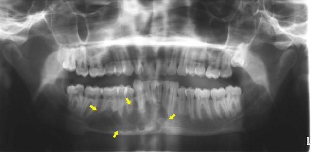 Остеомиелит нижней и верхней челюсти: симптомы, лечение хронического и травматического остеомиелита после удаления зуба