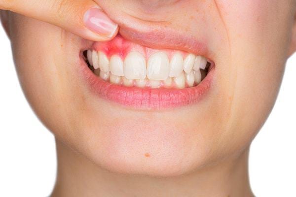 Киста во рту: на небе, в полости, щеке, лечение, удаление, причины