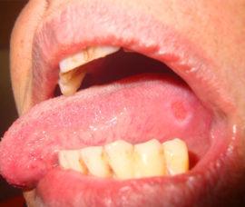 Лечение: стоматит у взрослых, как лечить в домашних условиях, симптомы, фото на языке, как избавиться, что такое, чем вылечить
