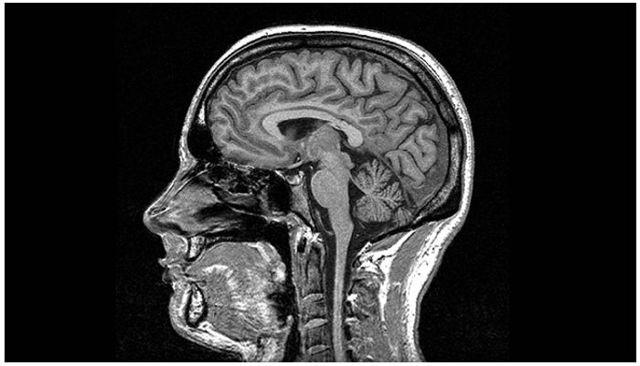 Можно ли делать МРТ с брекетами на зубах: исследование головного мозга, рентген, если есть система, делают ли флюрографию или нет?