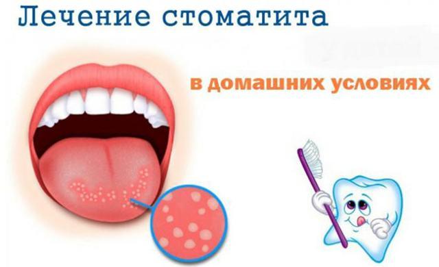 Причины возникновения стоматита, виды и формы стоматита, лечение стоматита народными средствами