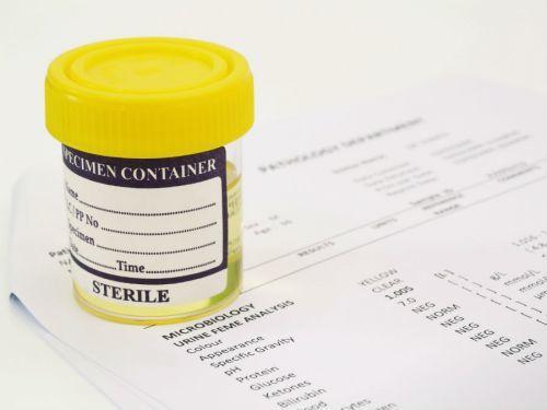 Кишечная палочка в моче при беременности (escherichia coli) и ее лечение