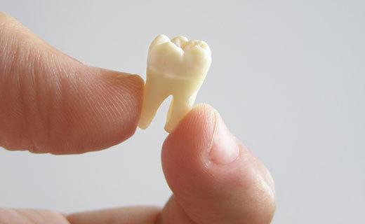 К чему снится выпадение зубов без крови у себя - точное толкование