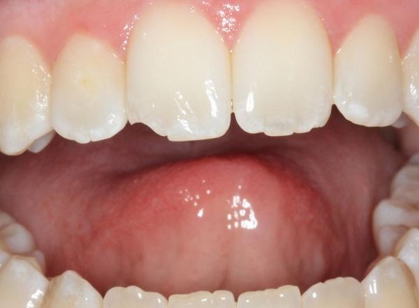 Что делать, если откололся кусочек или уголок зуба и появился скол