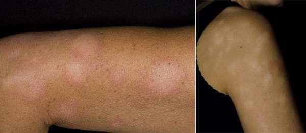 Белый лишай, простой хронический лишай – симптомы, фото. Как лечить белый лишай?
