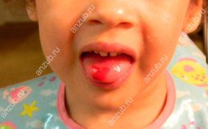 Красный язык у ребенка с пупырышками и пятнами, температура, фото, причины, лечение