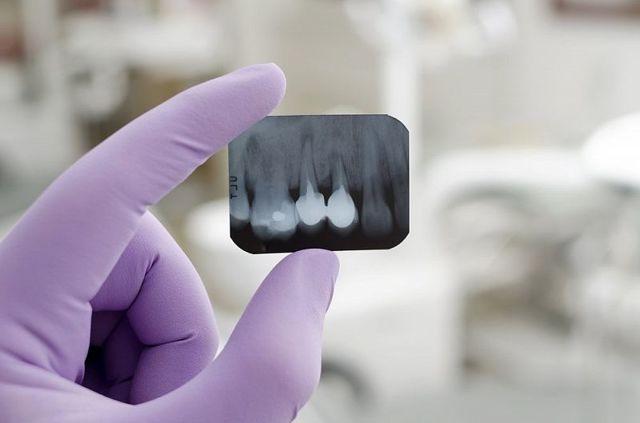 Альвеола во рту: что это такое, фото где находятся альвеолы зуба в полости рта