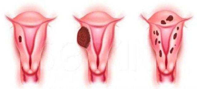 Аденомиоз матки – что это такое доступным языком? Внутренний эндометриоз – симптомы, причины, лечение