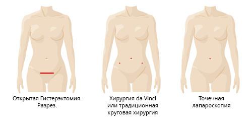 Послеоперационный гинекологический бандаж после удаления матки