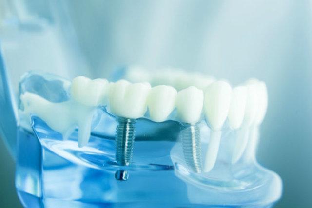 Голливудская улыбка - отбеливание зубов у стоматолога и в домашних условиях
