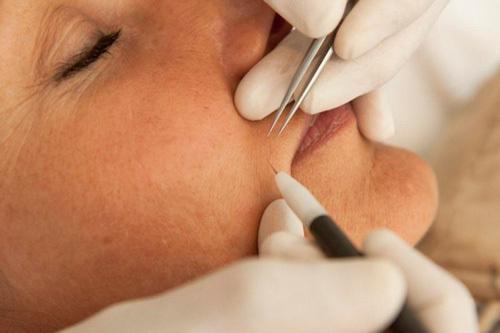 Уход за кожей после электроэпиляции: какие могут быть последствия, как ухаживать за кожей, меры предосторожности