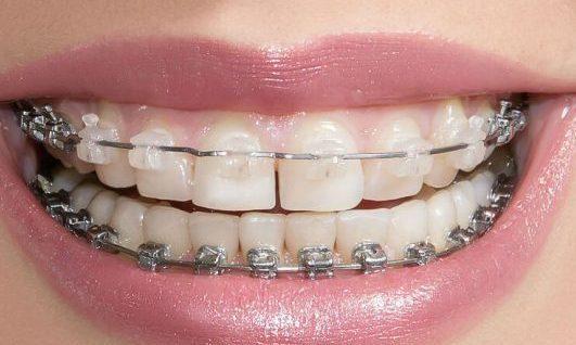 Репозиция уровня губы при лечении десневой улыбки: новый подход (2409) - Хирургия - Новости и статьи по стоматологии