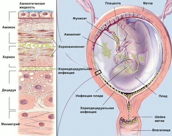 Обнаружено ureaplasma parvum: днк, что это значит и надо ли лечить