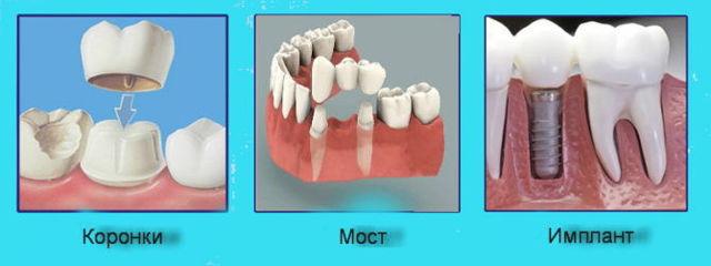 Зубной врач: чем отличается от стоматолога (ортопеда, терапевта), основная разница, что делает специалист