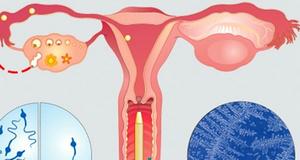 Двухсторонний сальпингит: симптомы, диагностика и лечение