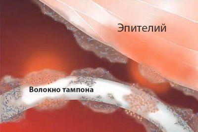 Как вытащить тампон без веревочки самостоятельно. Может ли действительно тампон уйти в матку?