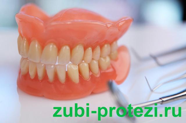 Что лучше выбрать: имплантацию или протезирование зубов, в чем разница, чем отличается