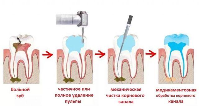 Пломбирование зубов - техника и особенности постановки пломбы на различные зубы
