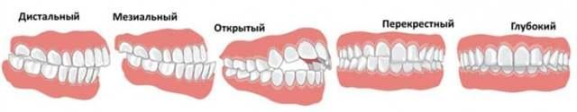 Виды прикуса у человека: физиологический, ортодонтический, правильный и неправильный, лечение аномалии развития челюсти