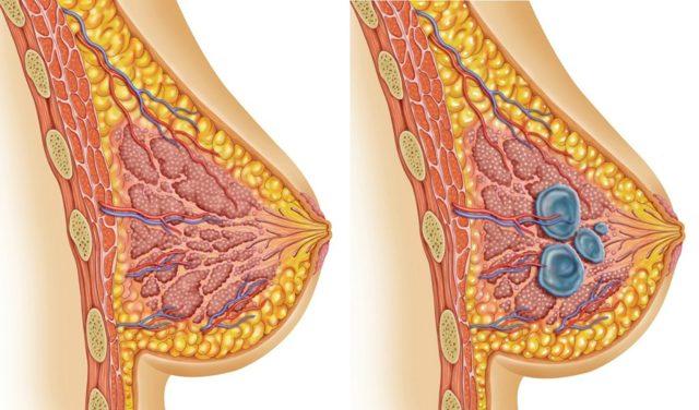 Жжение в молочной железе с левой или правой стороны у женщин