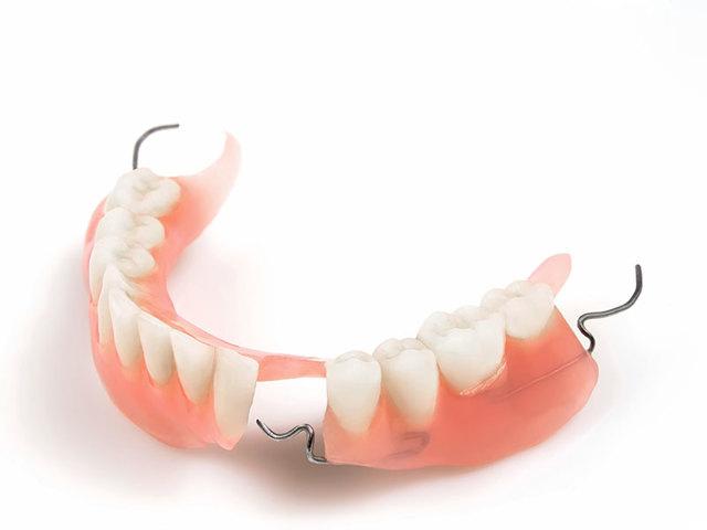 Зубные протезы на присосках – как устроены, сколько стоят, какие лучше, плюсы и минусы