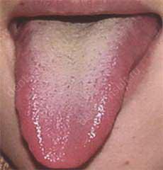 Причины и лечение горечи во рту - после еды, народными средствами, препараты, как лечить, сухость, желтый язык