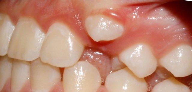 Ретинированные и дистопированные зубы: лечить или удалять