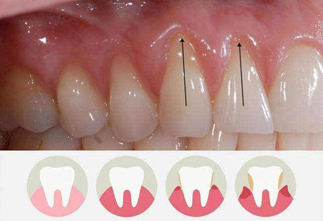 Возможно ли восстановить десна при пародонтозе, наращивание десенной и костной ткани, восстановление после болезни, как можно