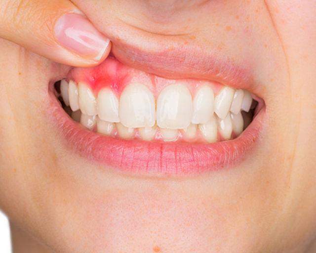 Дренаж в десне: как выглядит иссечение, сколько заживает после разреза и удаления зуба