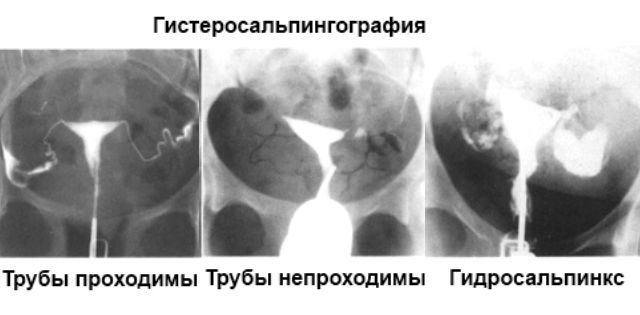 Проходимость маточных труб: как проверяют, какой метод наиболее достоверный, как лучше и где проверить, почему появились боли