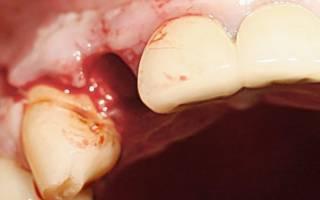 Альвеолит после удаления зуба и способы лечения загноившейся лунки