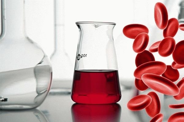 Как определить, чем отличить обильные месячные, или маточное кровотечение - подробная информация кровотечения