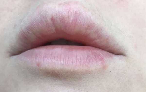 Белые точки (пятна, налет, пупырышки) на губах под кожей: что это, причины у ребенка и взрослого