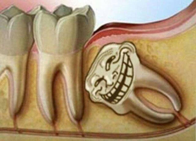 Может ли от зуба болеть голова? Возможна ли связь с больным зубом мудрости?