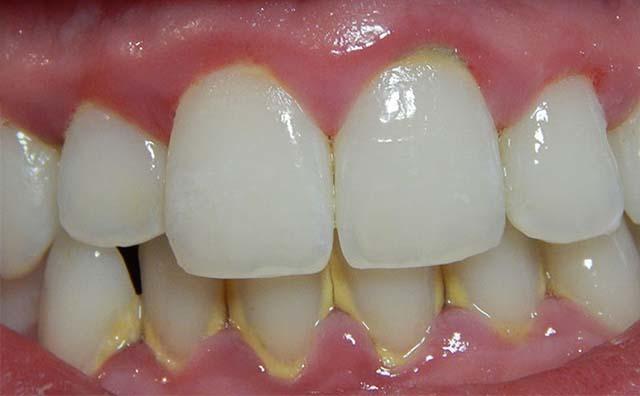 После лечения зуба опухла щека, как снять опухоль с лица от зуба
