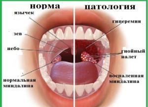 Белые комочки в горле с неприятным запахом - что это, почему вонючие на миндалинах, отхаркиваются и выходят штуки - как лечить