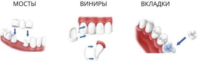Бюгельные протезы для зубов какие лучше, виды по материалу и способу крепления
