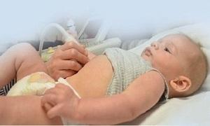 Желтый налет на языке у детей и грудничков: причины, лечение оранжевого языка