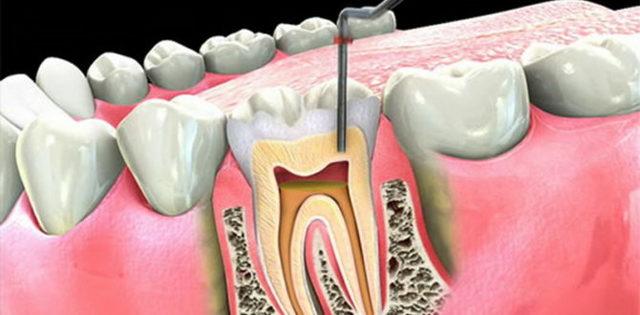 В зуб положили лекарство, а он болит: почистили каналы, заложили мышьяк, что еще делать, чтобы убить нерв, поставить после чистки