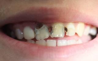 Кариес на передних зубах: лечение изнутри - как лечат и как выглядит, что делать