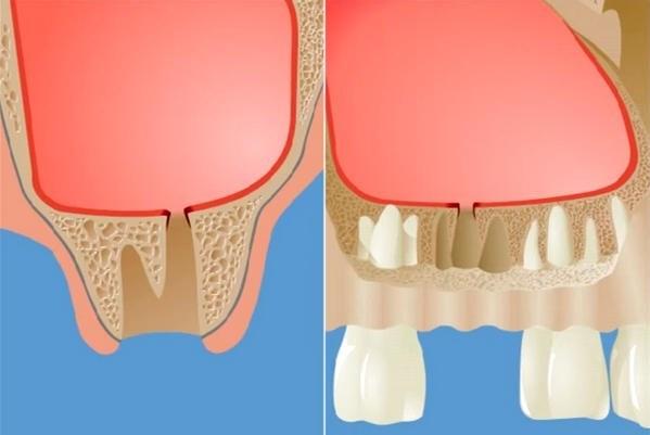 Гайморова пазуха и зубы: что делать если корень зуба мудрости в пазухе