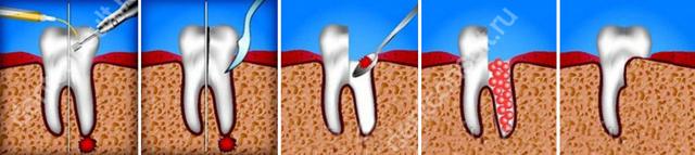 Обзор методики гемисекции – частичной ампутации корневой системы зуба как одной из мер по его спасению