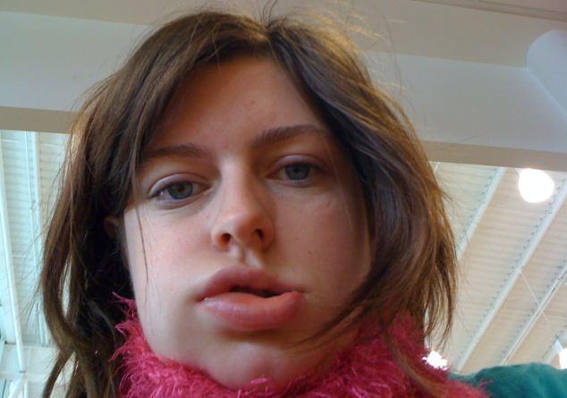 Как выглядит аллергия на языке - причины и способы лечения недуга